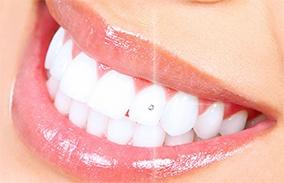 tooth-jem