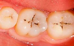 prevent cavities in your family's teeth