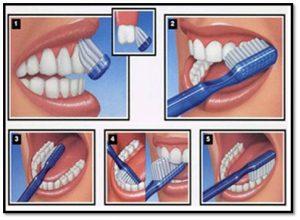 Proper-Tooth-Brushing