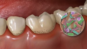 mouth-bacteria