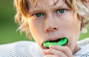 mouthguards