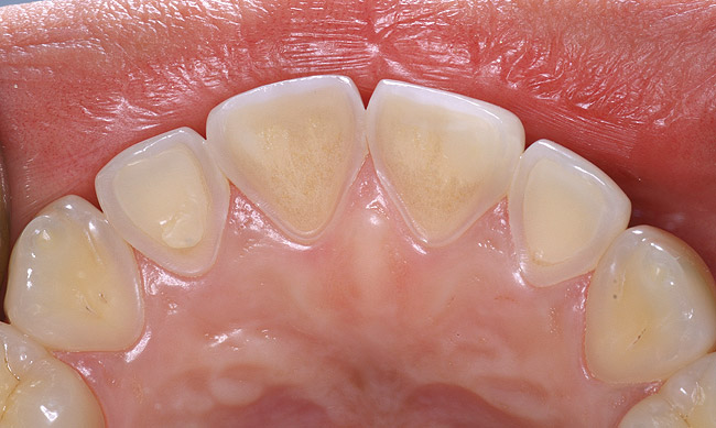 Image result for tooth erosion