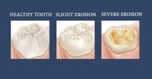 tooth erosion occl