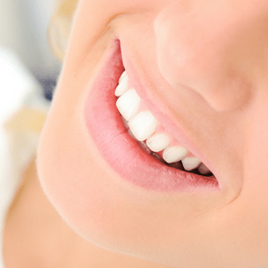 clean-healthy-teeth