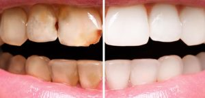 dangers of an acidic oral environment